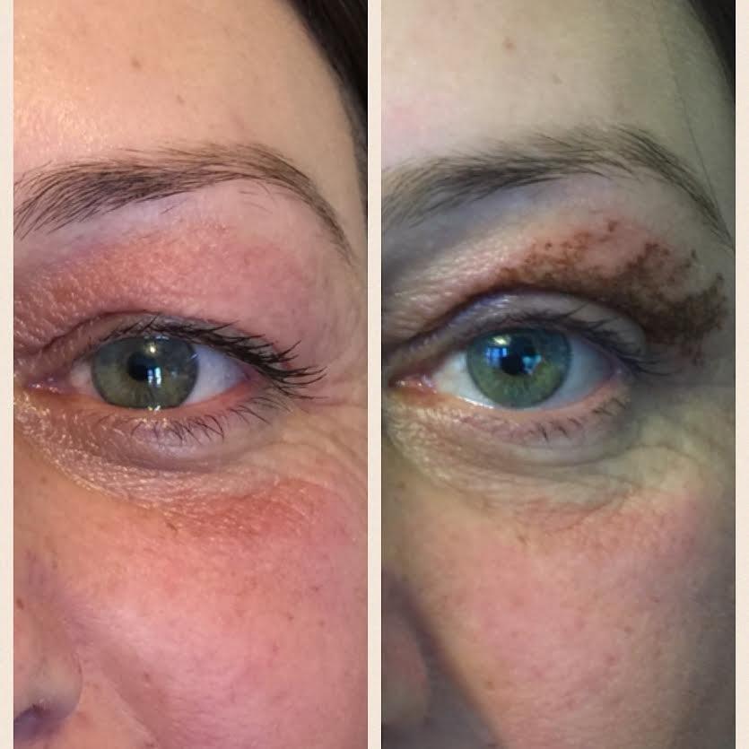 placo plasma eye lift reviews