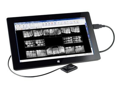 digital dental x ray sensor reviews